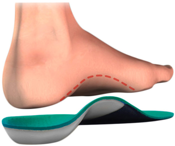 Orthotic Fabrication